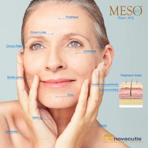 meso-pure-acido-hialuronico-puro-inyectado.microneedling.mesoterapia-cara