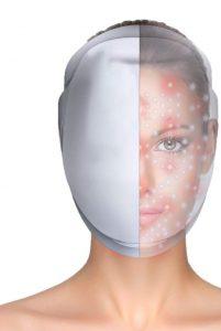 rejuvenecimiento-facial-antiedad-iDerma-Máscara-De-Belleza