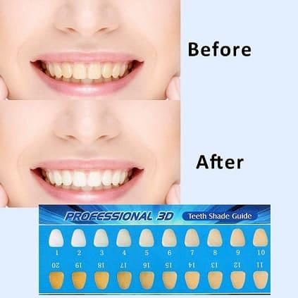 vsadey-kit-blanqueamiento-dental-de-dientes-profesional-funciona