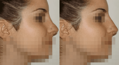 acido-hialuronico-en-la-nariz-antes-y-despues